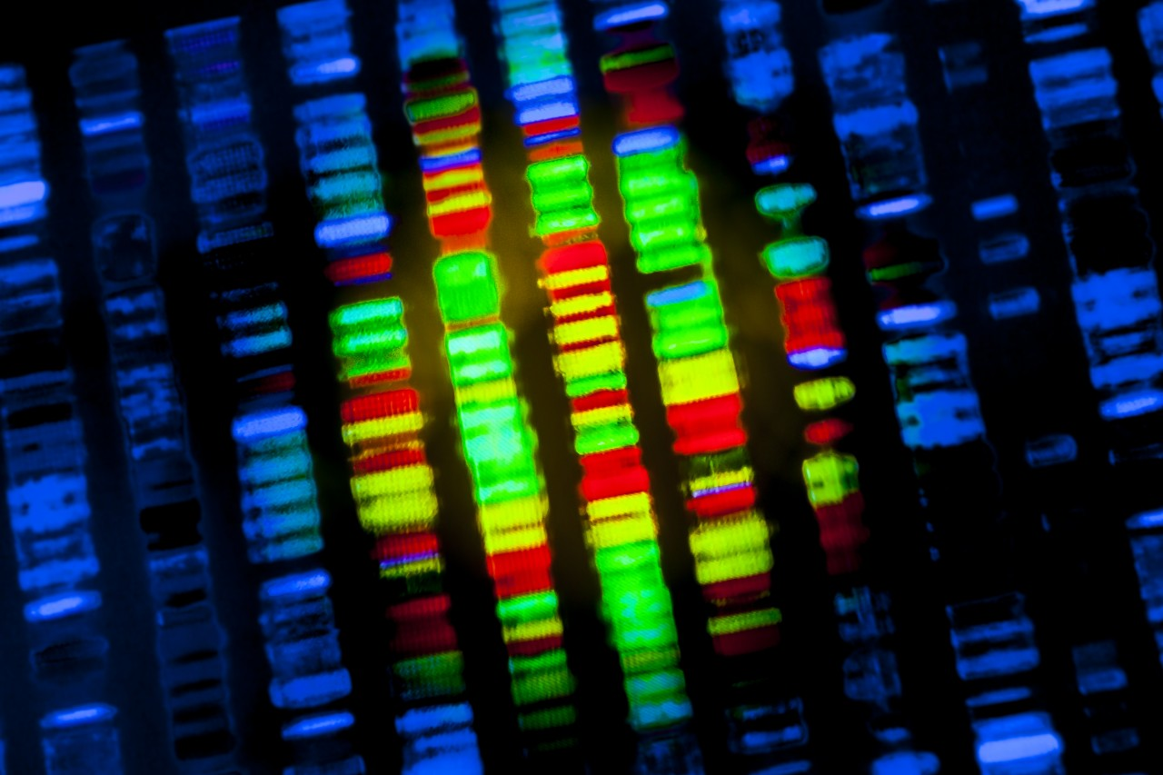 Genes Associated With Kidney Disease Identified With Sequencing Techniques