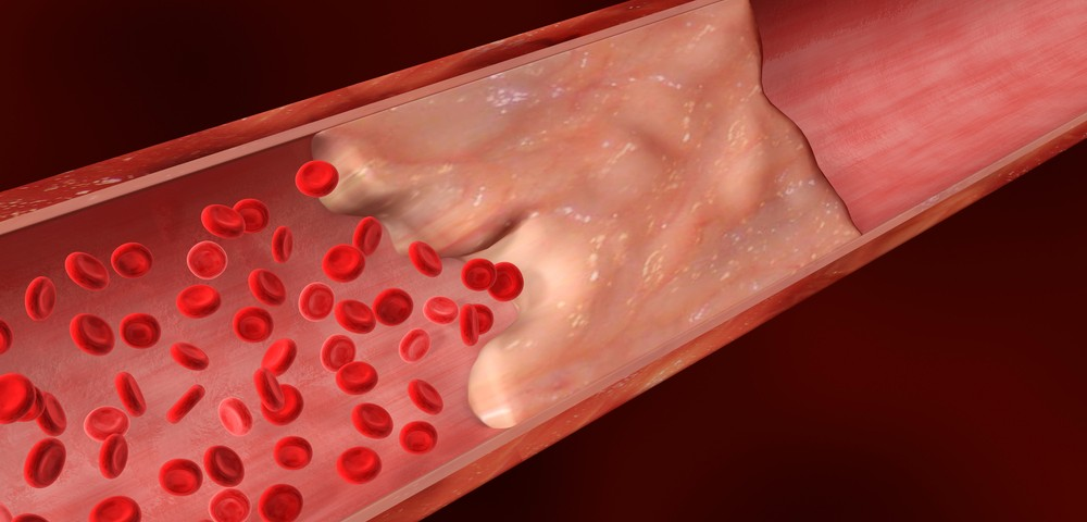 CKD Risk Reported to Rise in Step with Calcium Buildup in Coronary Arteries