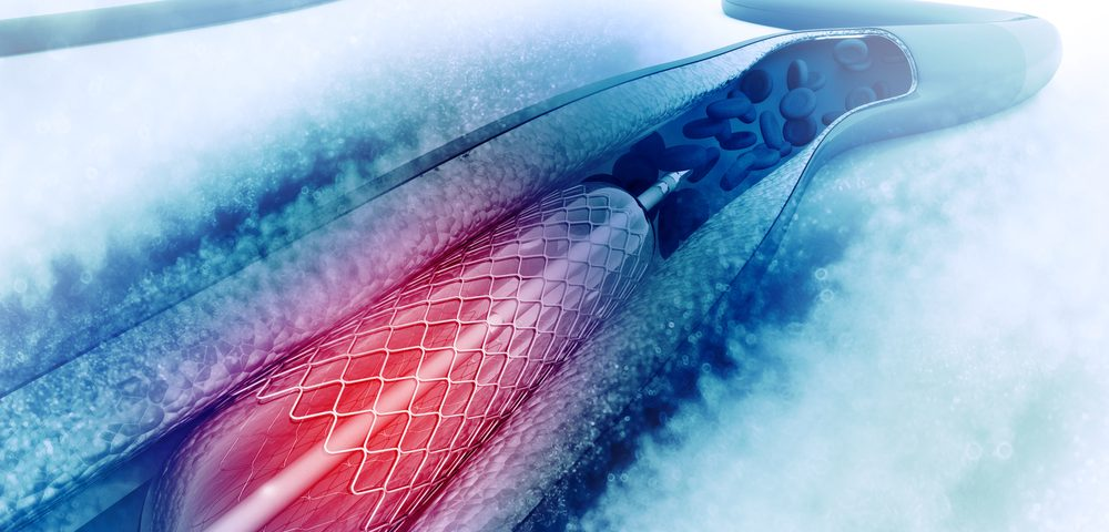 Angioplasty Linked to Risk of CKD, Especially in Those with Kidney Injury, Study Reports