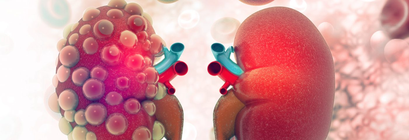 Kidneys Grown in Lab Helping Researchers Understand and Treat Disease in Patients